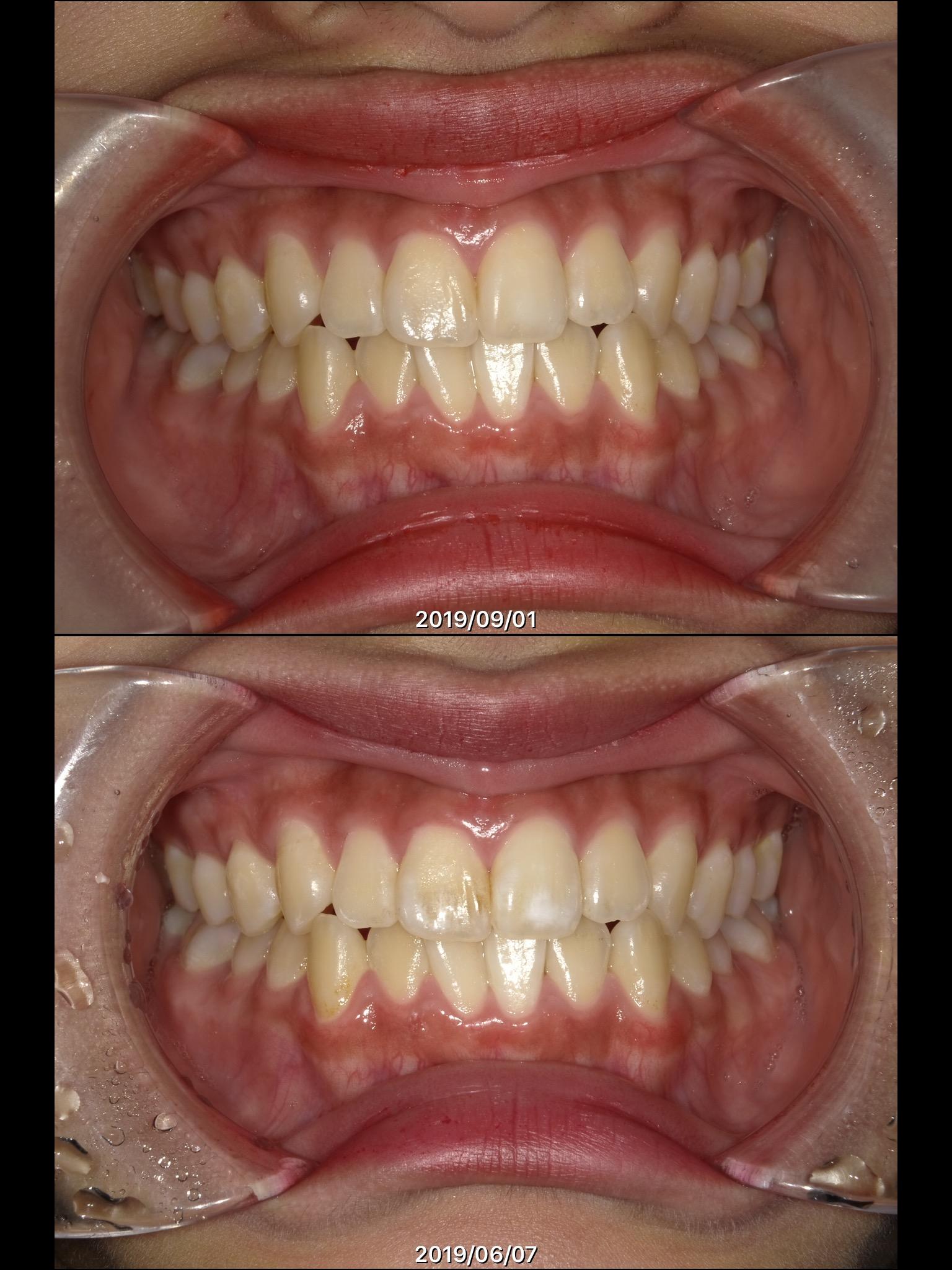 【虫歯と矯正ブログ】ホワイトスポット(歯の白濁、白斑)を削らないで治すicon(アイコン)治療